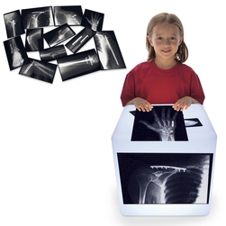 Roylco® Fixed Bone X-Rays