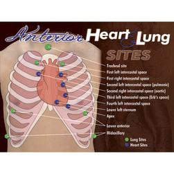 Nasco Anterior Heart & Lung Sites Poster