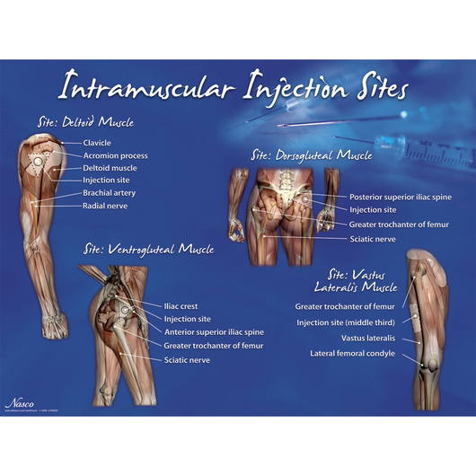 Intramuscular Injection Sites Poster