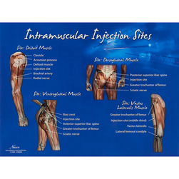 Intramuscular Injection Sites Chart