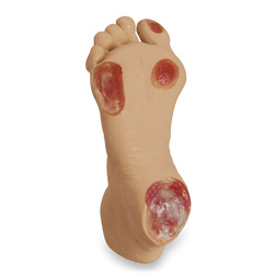 <strong>Life/form®</strong> Elderly Pressure Ulcer Foot - Light