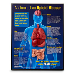 Anatomy of an Opioid User 3-D Display