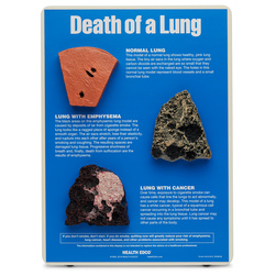 Death of a Lung Model