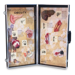 Consequences of Obesity Display Model