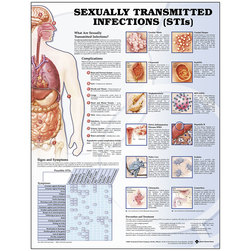 Sexually Transmitted Infections Poster