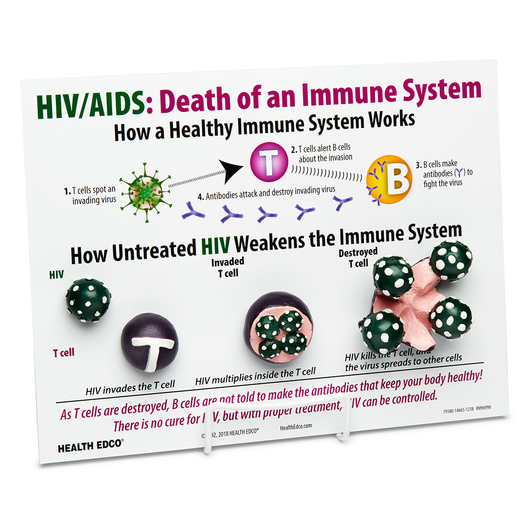 Death of an Immune System - 3-D HIV Infection Model - 9 in. x 12 in.