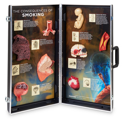 Consequences of Smoking Display