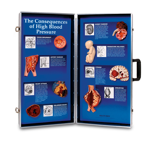 The Consequences of High Blood Pressure 3-D Display - 28 x 27