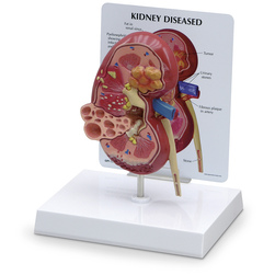 Kidney Model with Pathologies