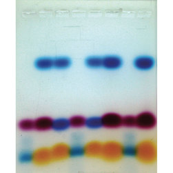 An Introduction to Electrophoresis