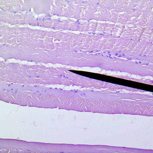 Striated muscle, human, section