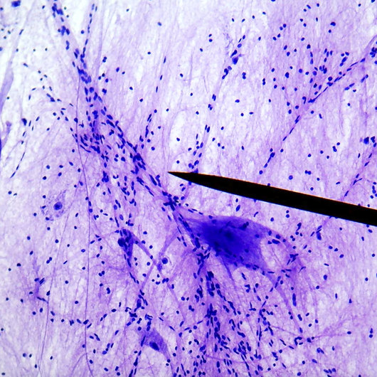 Motor nerve cells, from ventral horn of ox spinal cord, smear