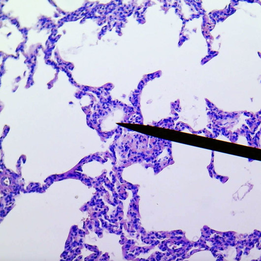 Lung, human, section of normal tissue
