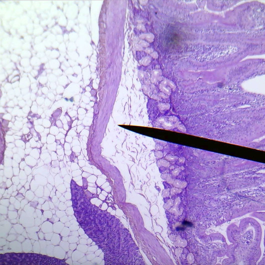 Duodenum, cross section