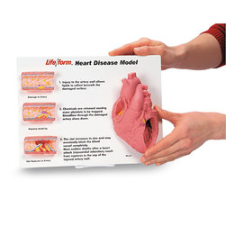 Nasco Artery/Heart Disease Display
