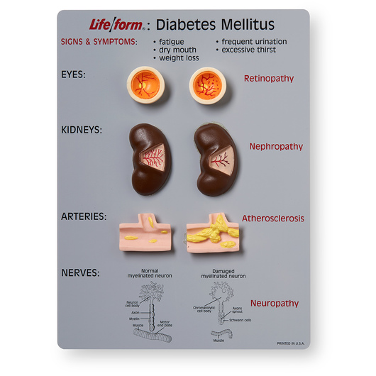 <strong>Life/form®</strong> Diabetes Mellitus Teaching Kit