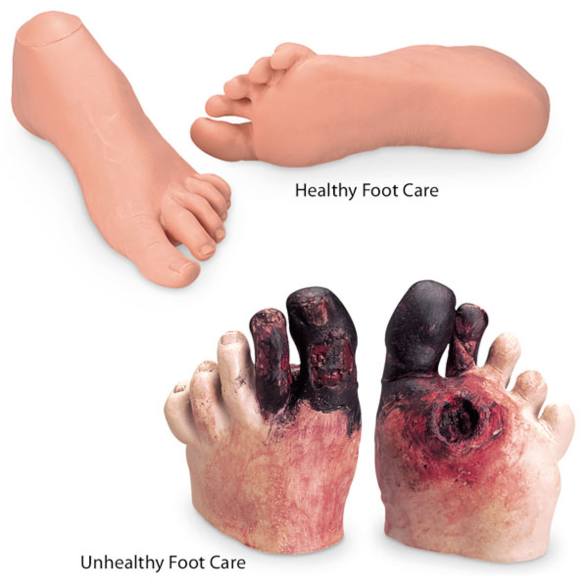 Nasco Healthy and Unhealthy Foot Care Set - WA21217