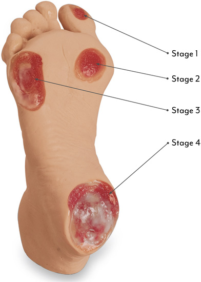 Elderly Pressure Ulcer Foot Stages